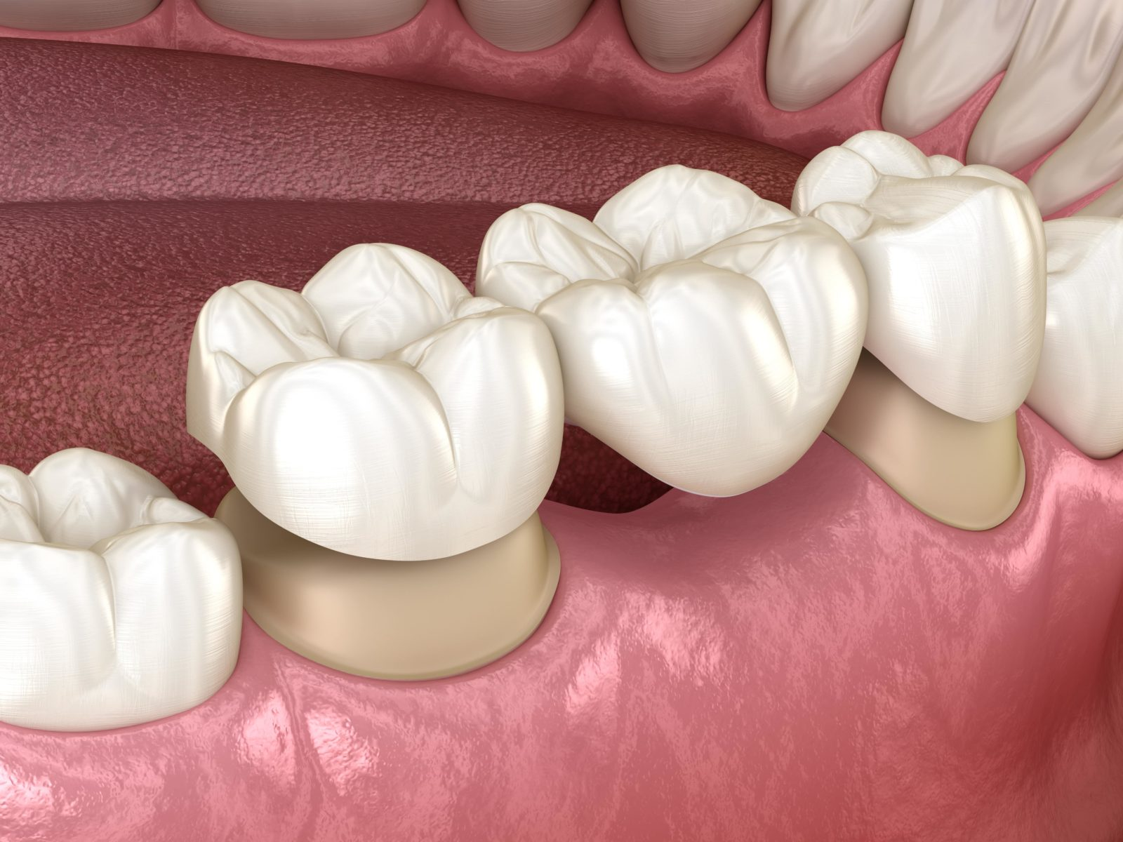 dental bridge being placed to restore missing tooth