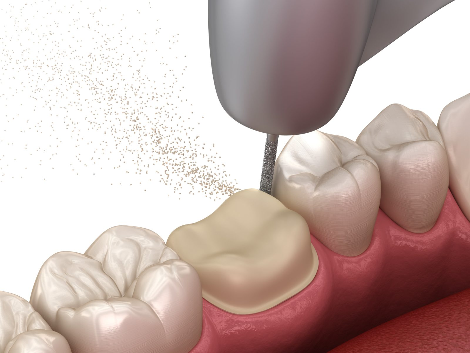 dental drill reducing a tooth in preparation for a dental crown