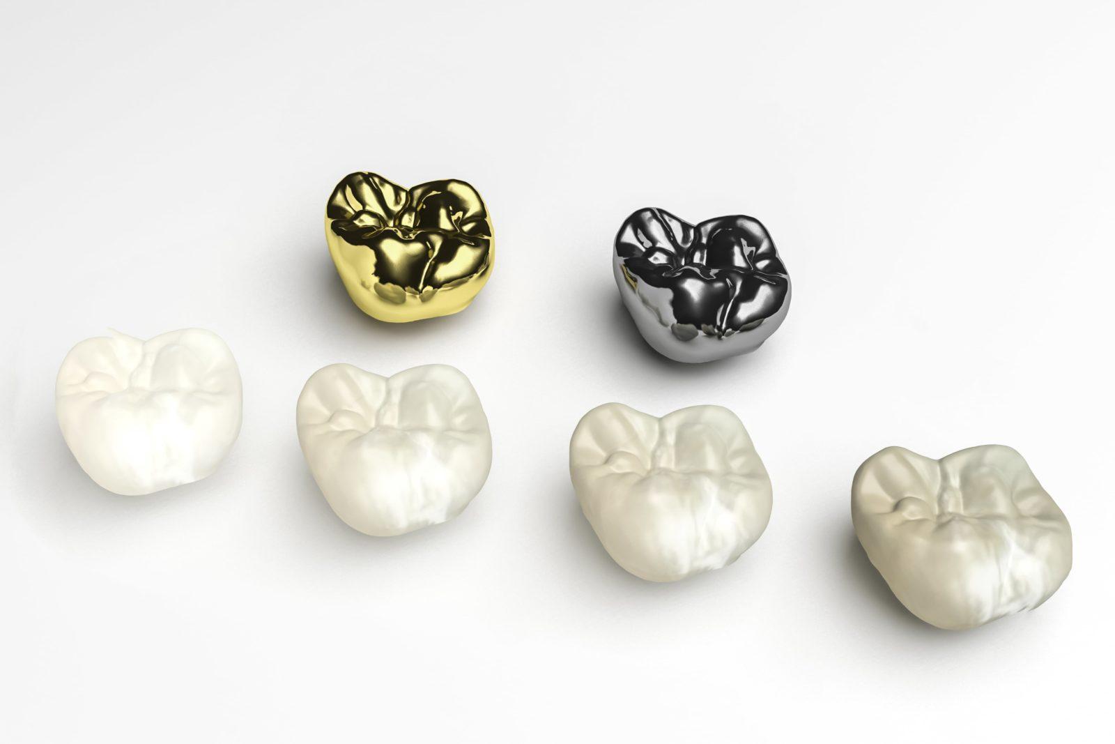 various types of dental crowns