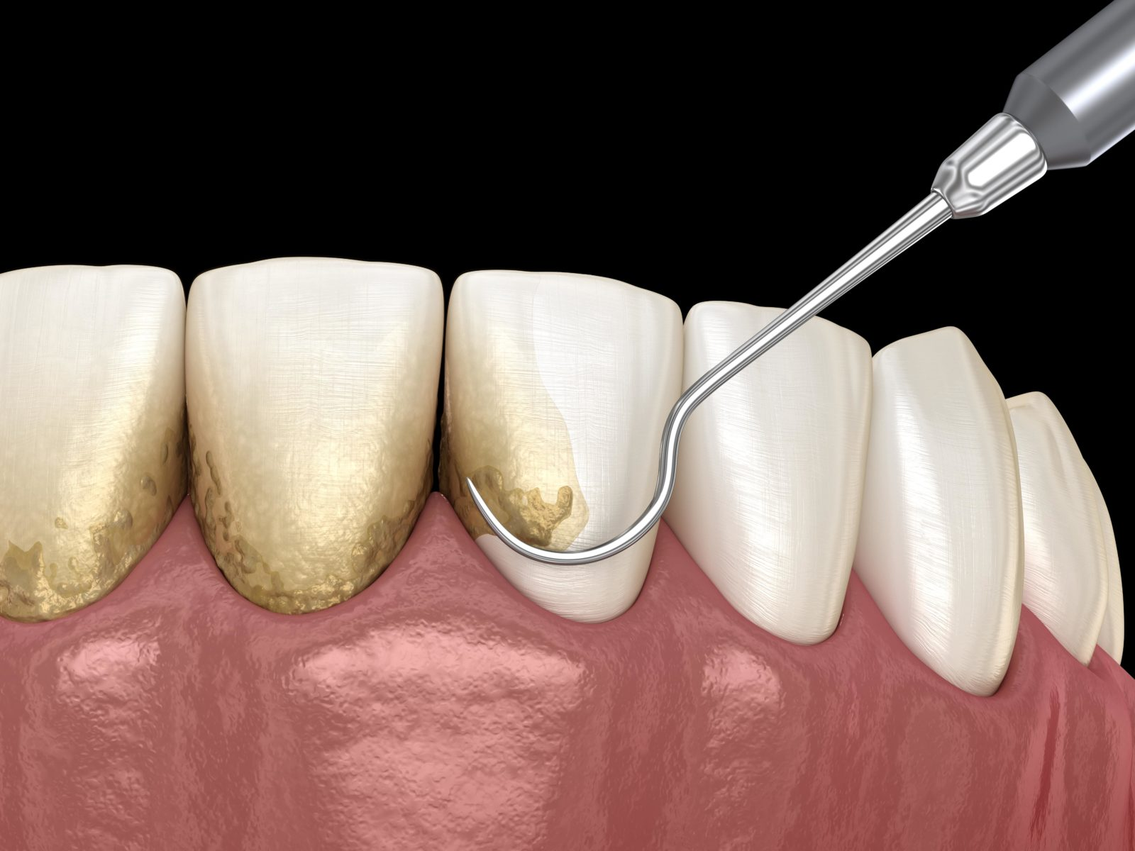 tooth scaling during dental cleaning